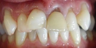 Robert - Porcelain Crowns before
