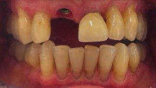Alice - Dental Implants before
