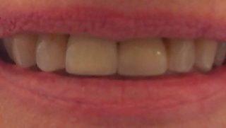 Alice - Dental Implants after