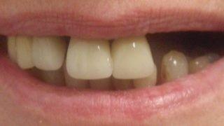 Janet - Dental Implants before