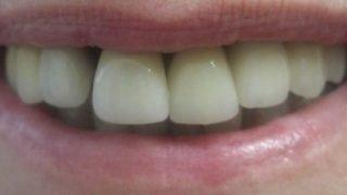 Janet - Dental Implants after