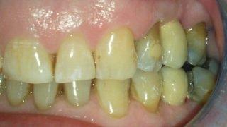 James - Dental Implants after