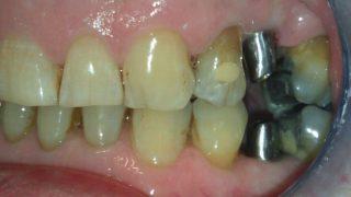 James - Dental Implants before