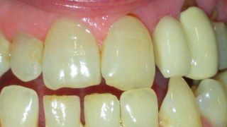 Clare - Adhesive Bridges, Porcelain Crowns before