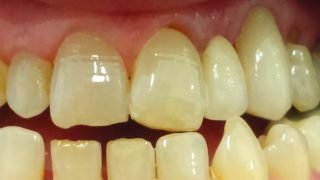 Clare - Adhesive Bridges, Porcelain Crowns after