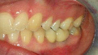 Annie - Dental Implants after