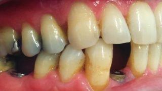 Ronald - Dental Implants before