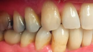 Ronald - Dental Implants after