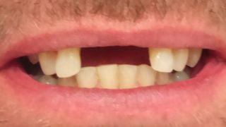 Robert - Dental Implants before