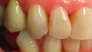Lynsey - Tooth-Coloured Fillings before