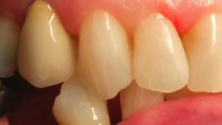 Lynsey - Tooth-Coloured Fillings after