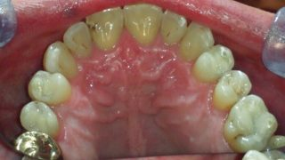 Gerry - Tooth-Coloured Fillings after