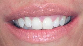 Lizzie - Teeth Whitening after