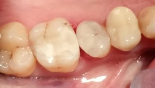 Tony - Tooth-Coloured Fillings after