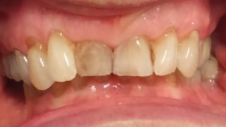 Mary - Porcelain Veneers before