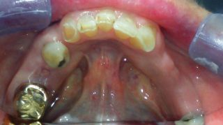 Maggie - Dental Implants before