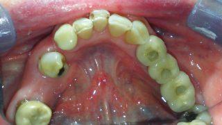 Maggie - Dental Implants after