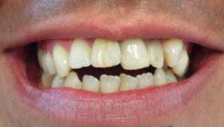 James - Porcelain Veneers before