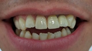 James - Porcelain Veneers after