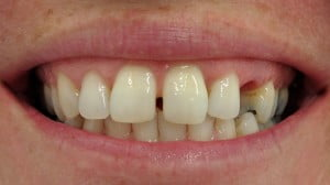 Susan - Dental Implants before