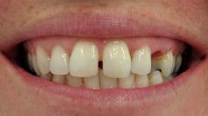 Susan - Dental Implants before