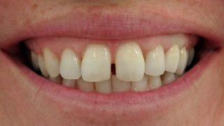 Susan - Dental Implants after