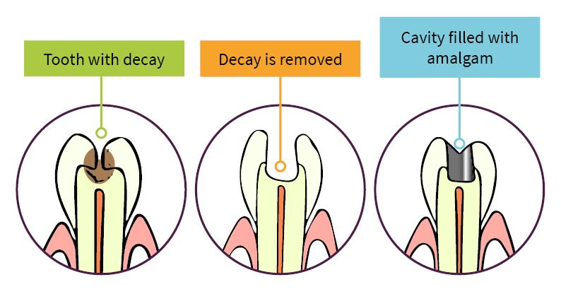 Amalgam Filling diagram