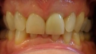 Edith - Porcelain Crowns after