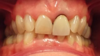 Edith - Porcelain Crowns before
