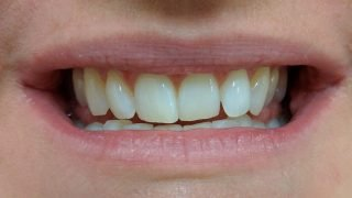 Susan - Teeth Whitening after