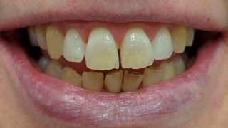 Georgina - Teeth Whitening before