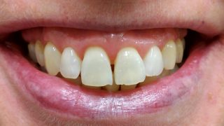 Georgina - Teeth Whitening after