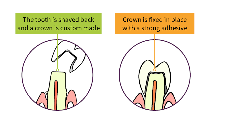 Crown diagram