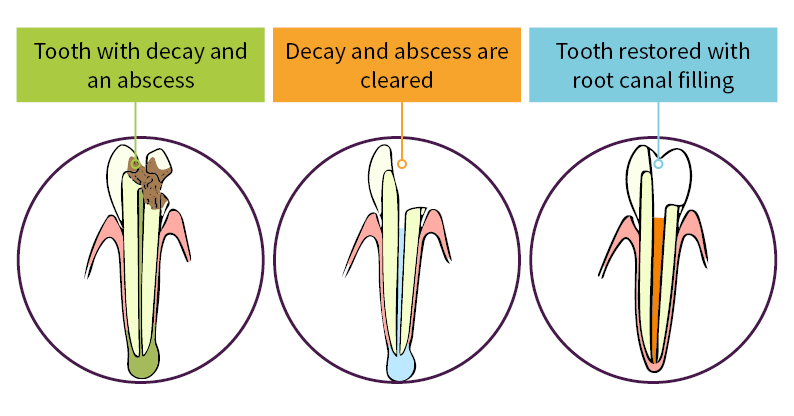 root canal filling diagram