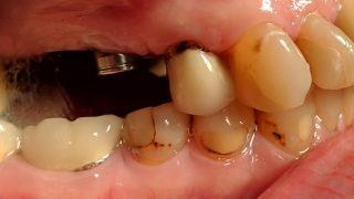 Jean - Dental Implants, Porcelain Crowns before