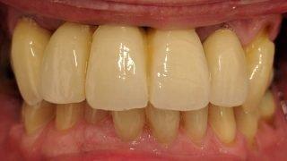 Howard - Dental Implants after