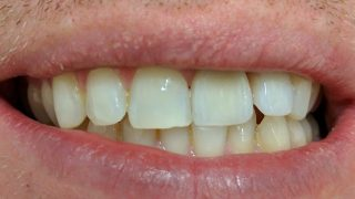 Tom - Porcelain Crowns after
