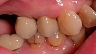 Jean - Dental Implants, Porcelain Crowns after