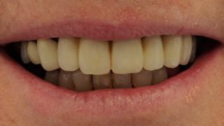 Penny - Dental Implants after