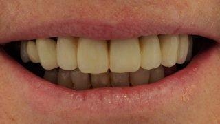 Penny - Dental Implants after