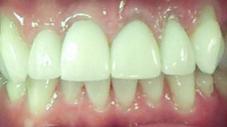 Robert - Porcelain Crowns after