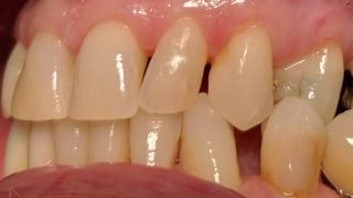 Maude - Tooth-Coloured Fillings before