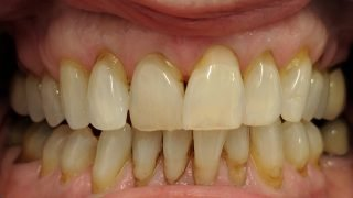 Angela - Composite Veneers, Teeth Whitening before