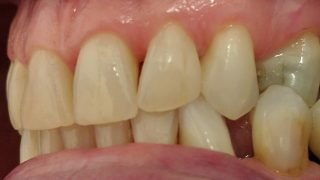 Maude - Tooth-Coloured Fillings after