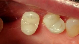 Mavis - Tooth-Coloured Fillings after