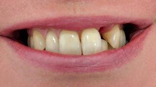 Julia - Dental Implants before