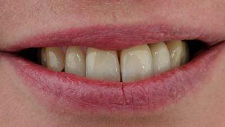 Julia - Dental Implants after