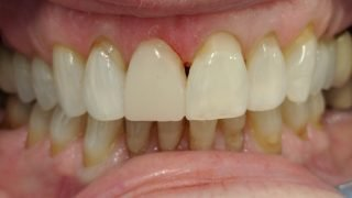 Angela - Composite Veneers, Teeth Whitening after