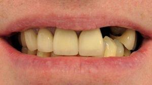 Philip - Dental Implants before
