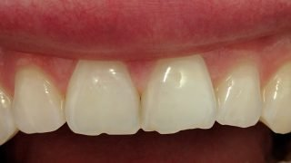 Joanna - Composite Veneers, Tooth-Coloured FIllings, Teeth Whitening before